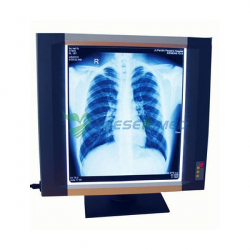 X-ray film viewer YSX1704