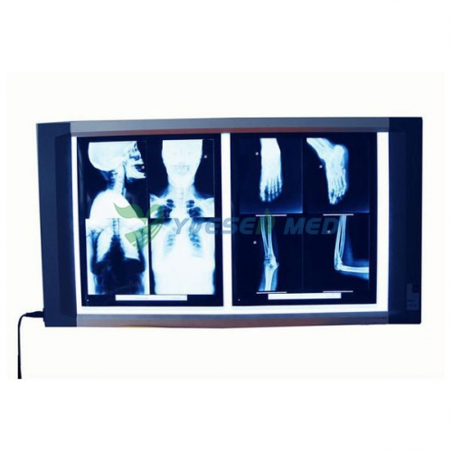 Luxury X ray film viewer YSX1705