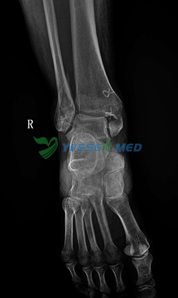 CCD Suspensory digital radiography System Effect Picture foot