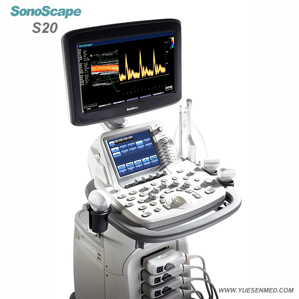 SonoScape S20 - Sonoscape Color doppler ultrasound system S20 For Sale