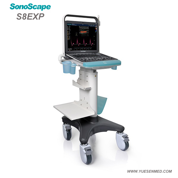 SonoScape S8EXP - Sonoscape Portable Color Doppler Ultrasound S8EXP Price - Sonoscape Ultrasound For Sale