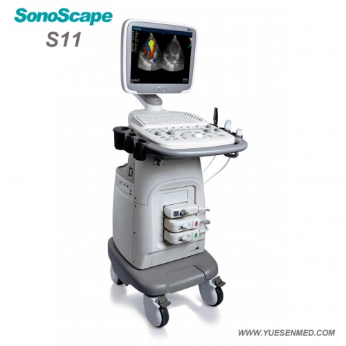 Trolley color doppler ultrasound sonoscape S11