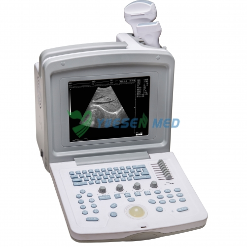 Portable B/W Ultrasound Scanner YSB180